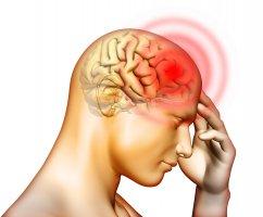 Симптомы и первые признаки менингита: как проявляется данное заболевание?